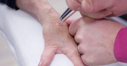 Mit einer Laserbehandlung können Sie Altersflecken und Pigmentflecken entfernen lassen.