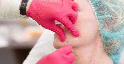 Durch die Faltenunterspritzung mit Hyaluronsäure versorgen Sie Ihre Haut mit der Feuchtigkeit, die sie benötigt – für ein frischeres und jugendlicheres Hautbild.