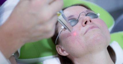 Gegen Rosacea, Couperose und Blutschwämmchen kann eine Laserbehandlung helfen