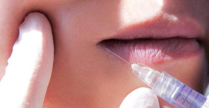 Mit einer Lippenaufspritzung erhalten Sie volle und sinnliche Lippen nach nur einer Behandlung.