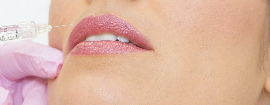 Zum Lippen Aufspritzen wird bei Dermamelius in Siegen einer Kundin Hyaluronsäure für mehr Lippenvolumen und klarere Lippenkonturen injiziert.